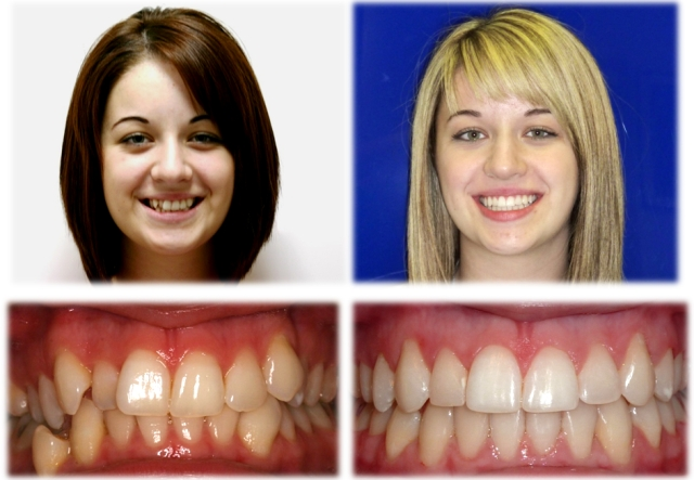 Our Results Olympus Pointe Orthodontics Garri Tsibel Dds