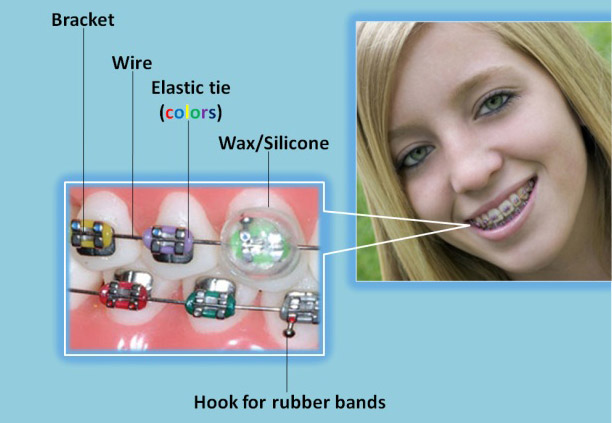 Braces Diagram Olympus Pointe Orthodontics Garri Tsibel
